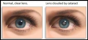 Cataract clouded lens
